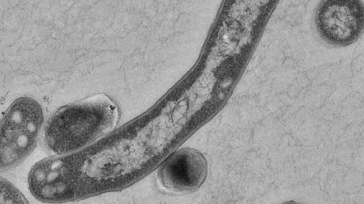 In Thüringen ist ein Vorschulkind an einer gefährlichen Tuberkulose erkrankt.