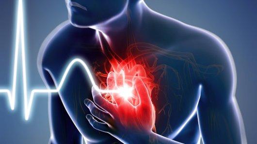 Ein Kardiologe erklärt, wie du einen Herzinfarkt frühzeitig erkennen kannst. (Symbolbild)