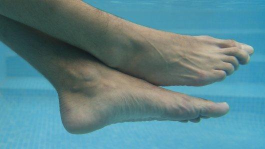 Ein Mann aus Florida hat in einer Blase im Fuß etwas Überraschendes gefunden. (Symbolfoto)