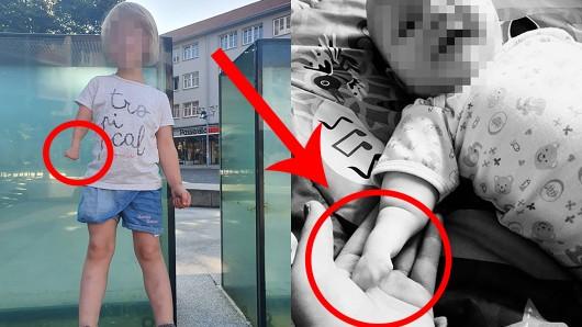 Die kleine Hanna aus Gotha wurde 2015 geboren. Auch ihr fehlt eine Hand.