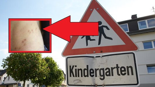 In einem Kindergarten in Weimar sind mehrere Fälle von Krätze aufgetreten. Die Einrichtung bleibt zunächst geschlossen. (Symbolbild)